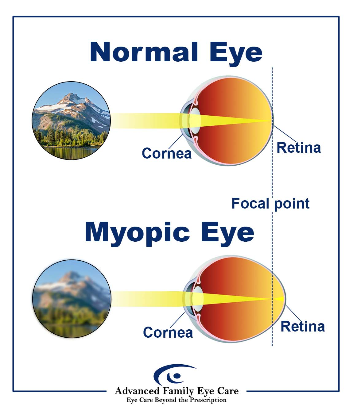 Infographic of two diagrams, the first one illustrating a normal eye and the second one illustrating an eye with myopia. The first diagram shows a normally shaped eye on the right side of the diagram. Light enters the eye and is refracted onto the retina. The left side of the diagram shows what this eye sees – a clear image of mountains. The second diagram shows an abnormally shaped myopic eye on the right side. Light enters the eye and is refracted in front of the retina. The left side of diagram 2 shows what this eye sees – a blurry image of mountains.